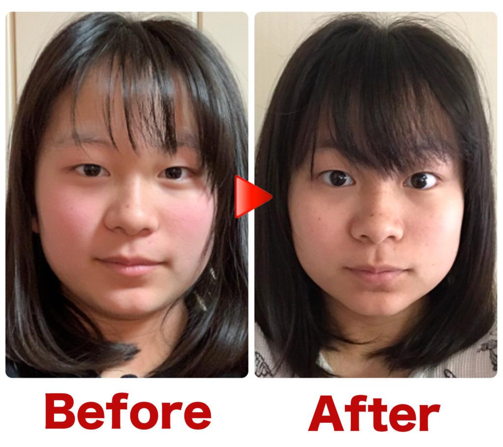 瞼が開き顔が小さくなりました。1回だけの施術結果です。