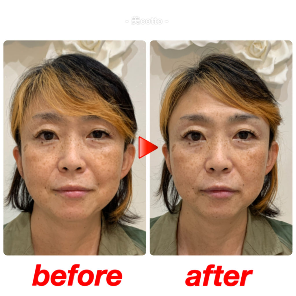 ほっぺのたるみが改善し、顔幅が小さくなり顎がシュッとなりました。